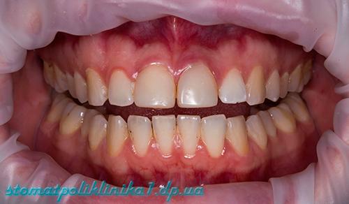Профессиональная гигиена полости рта - До лечения