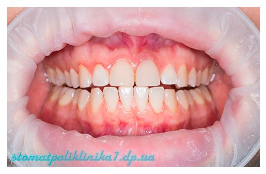 Профессиональная гигиена полости рта - После лечения
