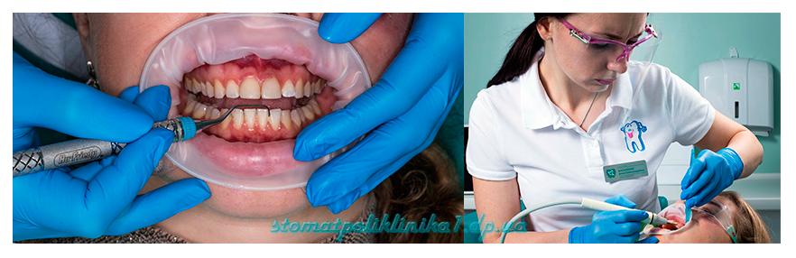 Профессиональная гигиена полости рта - Работа ультрозвуковым скейлером- Работа ручным инструментом (скейлер Hu-Friedy)